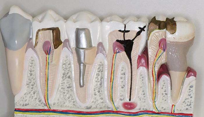 Wurzelkanal-Behandlung Bild